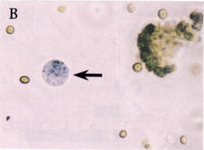 쪽을 비롯한 많은 식물이 인디고를 만들고 인류는 수천 년 전부터 이를 파란색소로 이용해왔다. 식물은 잎 세포의 액포에 물에 녹는 배당체인 인디칸 형태로 저장하고 엽록체에 이를 분해하는 효소를 갖고 있다. 세포가 손상돼 액포가 분해효소에 노출되면 배당체가 인독실로 분해되고 최종적으로 인디고로 산화돼 남색을 띄게 된다. 식물이 왜 인디고를 만드는지는 아직 잘 모른다. 화살표가 가리키는 대상은 배당체가수분해효소를 처리한 쪽의 액포로 인디고 결정이 생긴 부분이 파랗게 보인다. - '플랜트셀 생리학' 제공